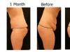 abdomen-1-month
