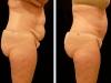 abdomen-2012_05_09