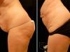abdomen-mv