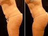 abdomen-st