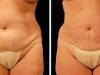 abdomen2-2012_05_09