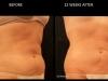 demo-3-3-month-abdomen