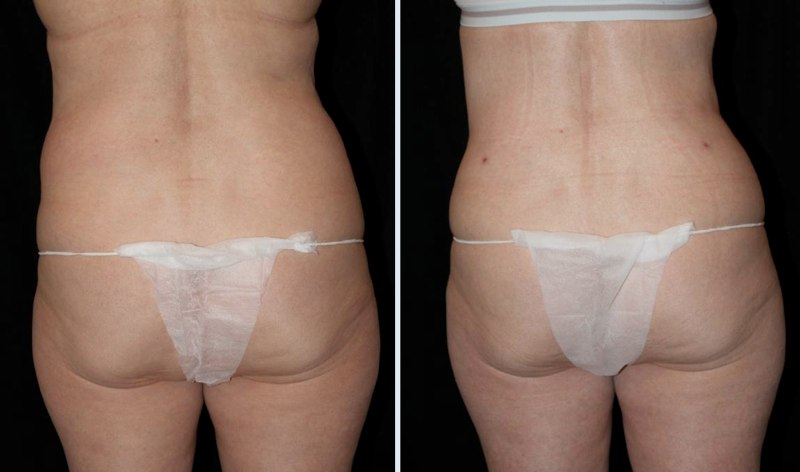 Tummy Tuck Miami Cost, Before After and Tuck Recovery