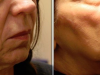 facial_rejuvenation_image_1