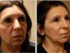 facial_rejuvenation_image_11