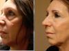 facial_rejuvenation_image_12
