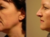 facial_rejuvenation_image_13