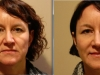 facial_rejuvenation_image_14