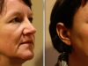 facial_rejuvenation_image_15