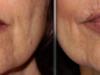 facial_rejuvenation_image_2