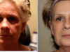 facial_rejuvenation_image_3