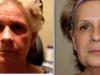 facial_rejuvenation_image_3