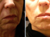 facial_rejuvenation_image_4