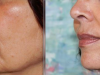facial_rejuvenation_image_5