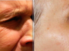 facial_rejuvenation_image_7