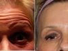 facial_rejuvenation_image_8
