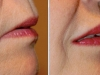 beautiful-lips-fillers-2