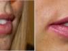 beautiful-lips-fillers-4