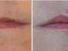 beautiful-lips-fillers-5