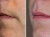 beautiful-lips-fillers-7