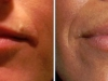 beautiful-lips-fillers-8