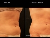 Reduce Love Handles | Before and After 5