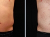 Reduce Love Handles | Male Before and After 2