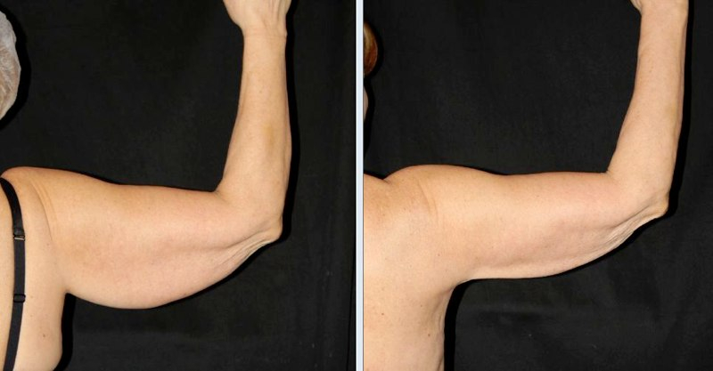 Arm Lift Incisions : Brachioplasty no scar arm lift colleyville