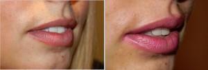 Beautiful Lips Fillers 4